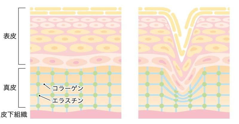 肌のターンオーバーとシワの図