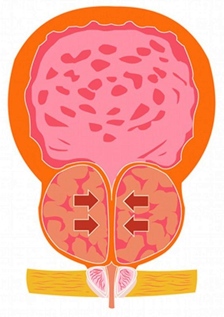 前立腺肥大の排膿症状の図