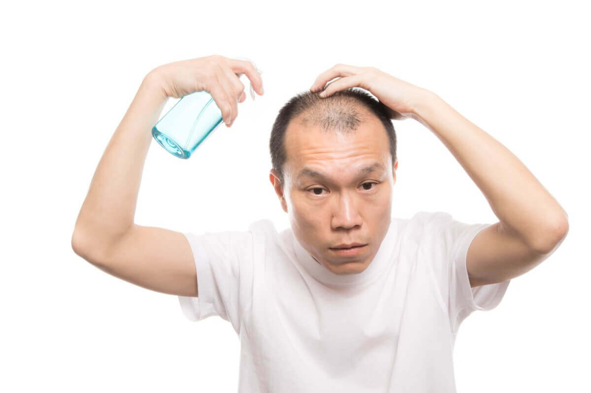頭頂部が薄い、オデコがハゲる|ハゲ・AGAの原因と対策