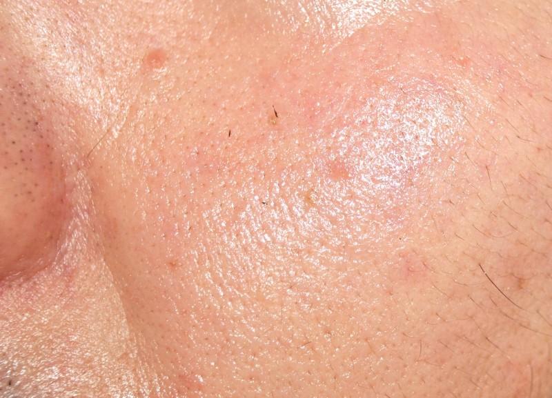 目の下のシワに効いたヒアルロン酸2
