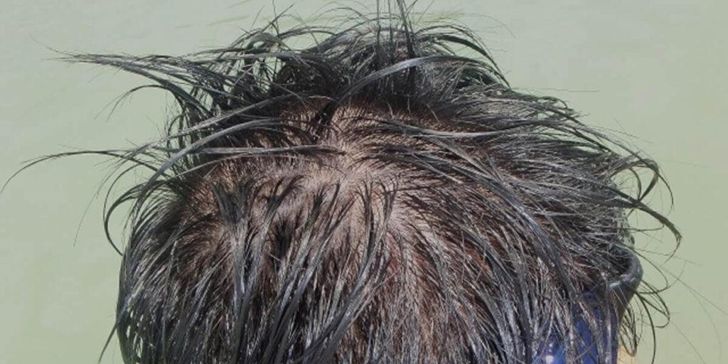 薄毛で植毛・増毛する