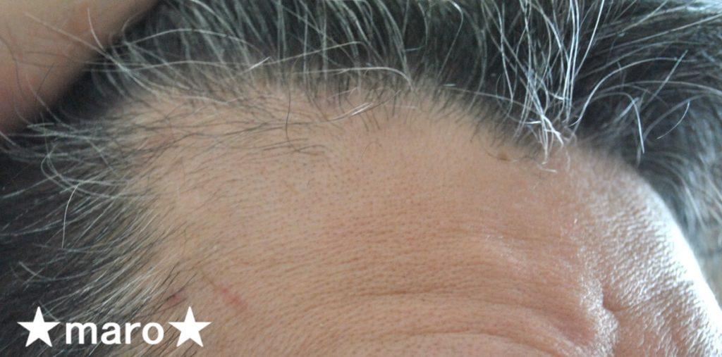 サンカラーマックス白髪染め使用前