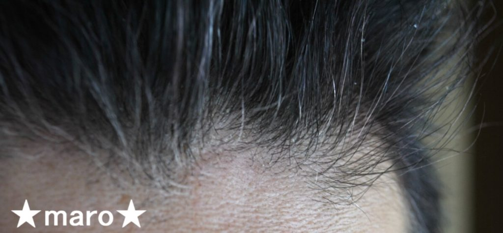 サンカラーマックス白髪染め使用後