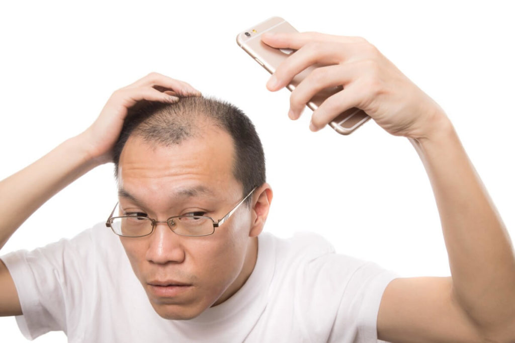白髪、ハゲ、AGAなど髪の悩み